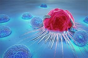 """Algorithms for identifying new """"cancer genes"""" It is estimated that the number of cancer cases worldwide will double by 2040. This makes the search for genes that cause cancer even more important. A team of researchers from the University of Bern has now developed algorithms that massively simplify the hunt for """"cancer genes"""" in a poorly understood part of our genome."""