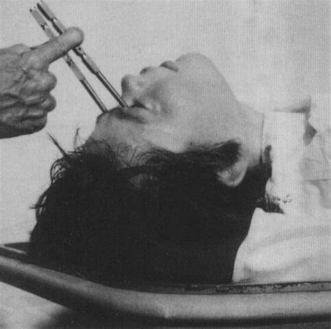 10 Of The Most Bizarre Medical Practices And Theories