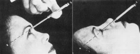 Do you need a lobotomy? Lobotomy Before and After pics ...
