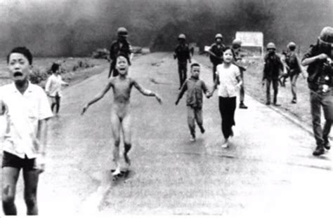 "Napalm Aftermath -Kim Phuc ""The girl in the picture ..."