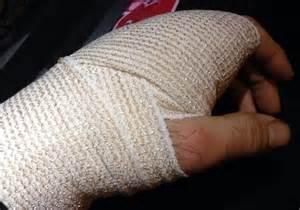 Gallery For > Broken Hand