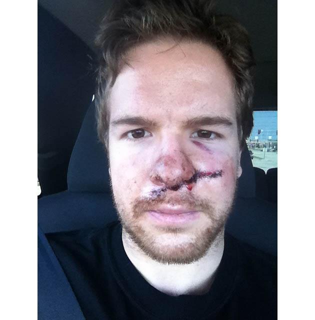 Here's Ryan Duncan, former Hobey Baker Award winner, after taking skate to face (PHOTO)